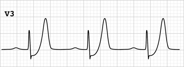 "Is early invasive management as ST elevation myocardial infarction warranted in de Winter's sign?-a ""peak"" into the widow-maker."